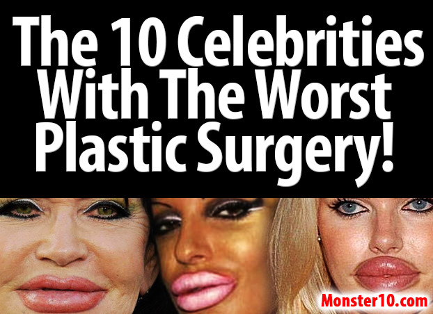 The 10 Celebrities With The Worst Plastic Surgery!